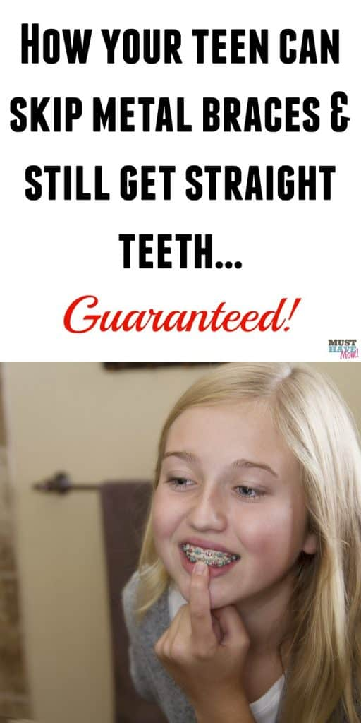 How your teen can skip braces and get straight teeth guaranteed! No braces required! Check out these tips and save your teen from having to get metal braces.